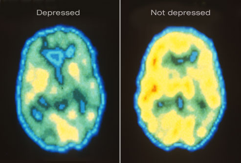 Feeling blue? Turns out,that's exactly how your brain looks when it's struggling with depression.
