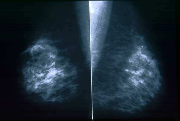 Here's a mammogram, a type of screening most women won't experience until their mid-30's.